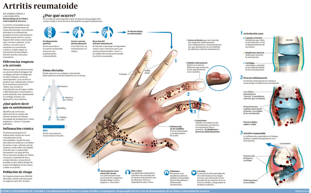 beneficios que tiene el magnesio sobre la artritis