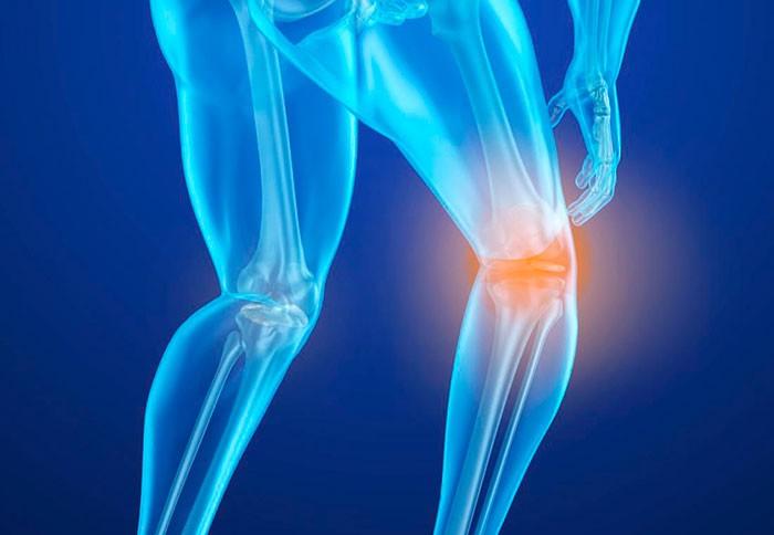 Osteoporosis: por qué el magnesio es un mineral crucial para la salud ósea